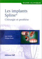 Les implants Spline