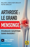 Arthrose : le grand mensonge