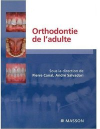 Orthodontie de l¿adulte