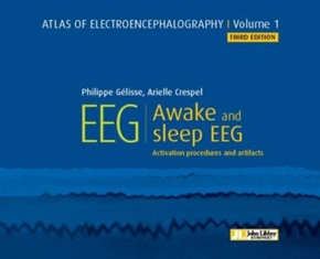 Atlas of Electroencephalography - Volume 1