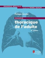 Imagerie thoracique de l'adulte (4e édition)